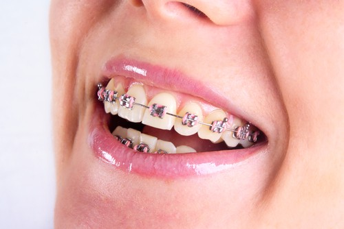 smile with orthodontic